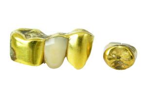 Wir kaufen Zahngold aller Art in NRW an, Solingen, Düsseldorf, Wuppertal, vergoldete Zähne, Zahnschmuck, Rares Gold gegen Bares